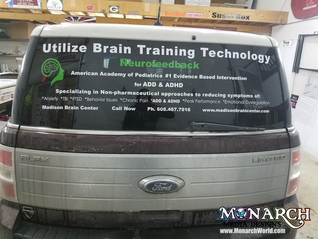 Brain Center Rear Window Graphics